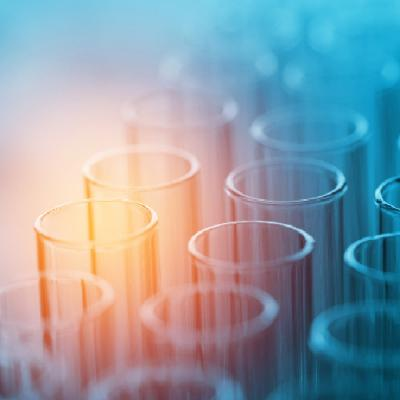 Dealing with excess: The art of preparative liquid chromatography