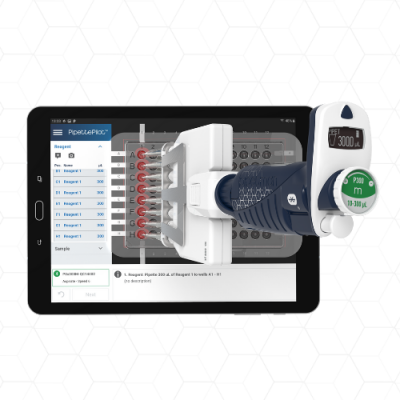 Case Study: The First Steps of Digitalization and Interoperability in the Analytical Lab